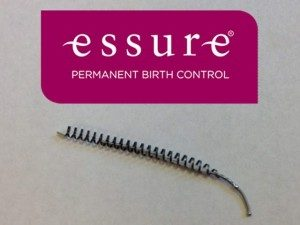 Essure Birth Control