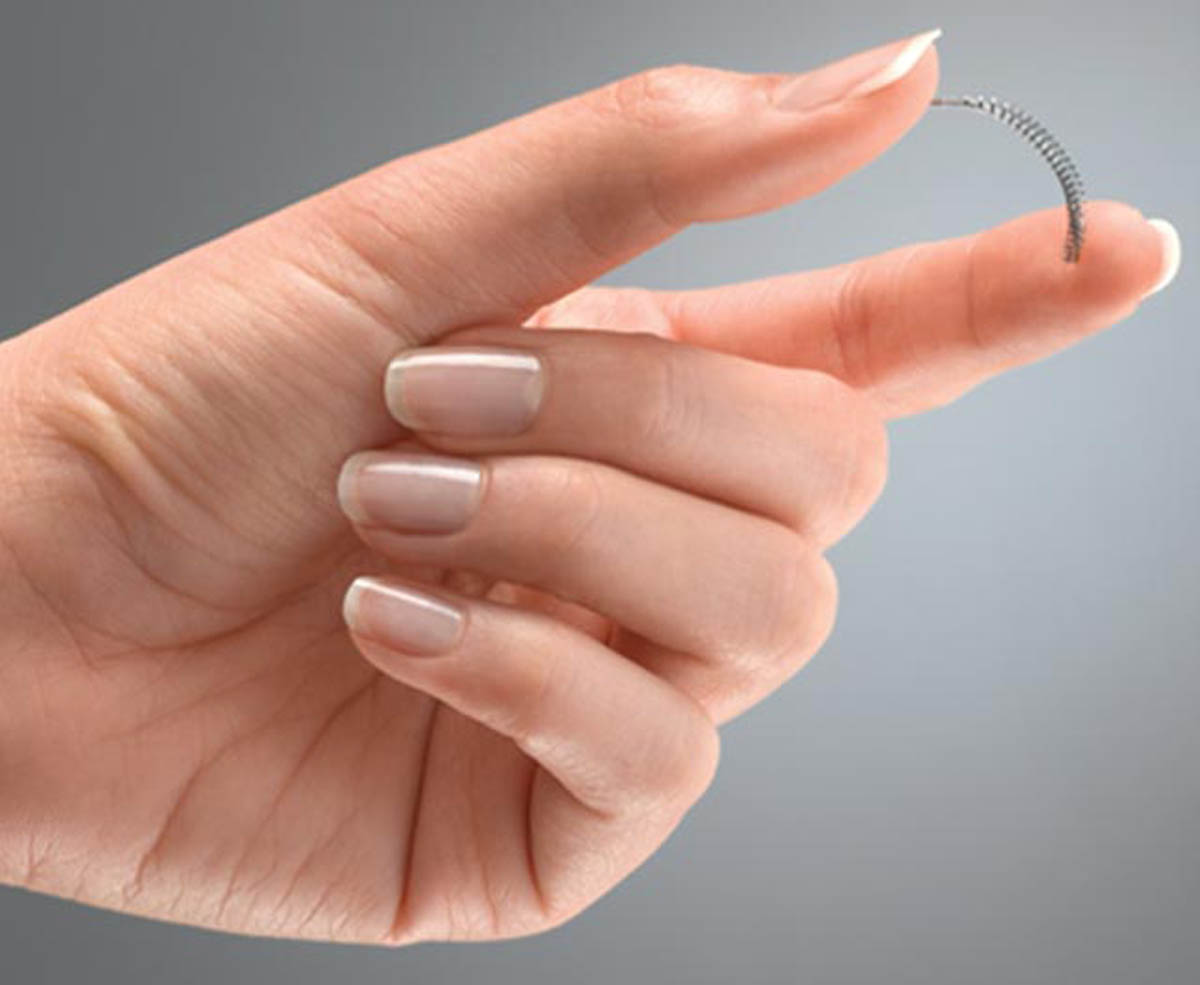 Essure lawsuits - defective contraceptives.