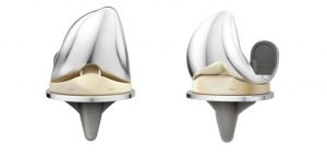 DePuy Attune Knee Replacement Lawsuit