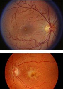 Retinal maculopathy - Elmiron